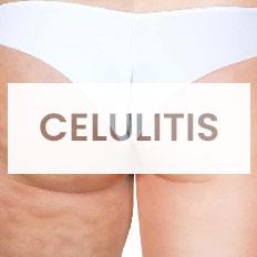 ejercicios quitar celulitis